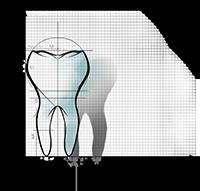 illustration eines zahns